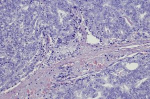 Micrograph of metastatic prostate carcinoma