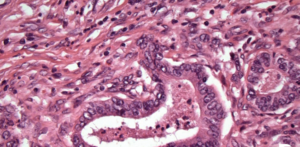 colorectal cancer cells stained under a microscope