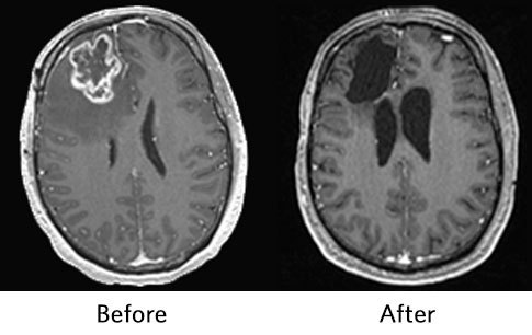 MR images of a brain at baseline vs. ONC201, a  Neoadjuvant Immunotherapy