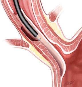 stent illustration for POEM