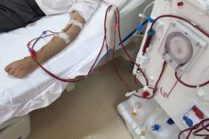 person receiving dialysis
