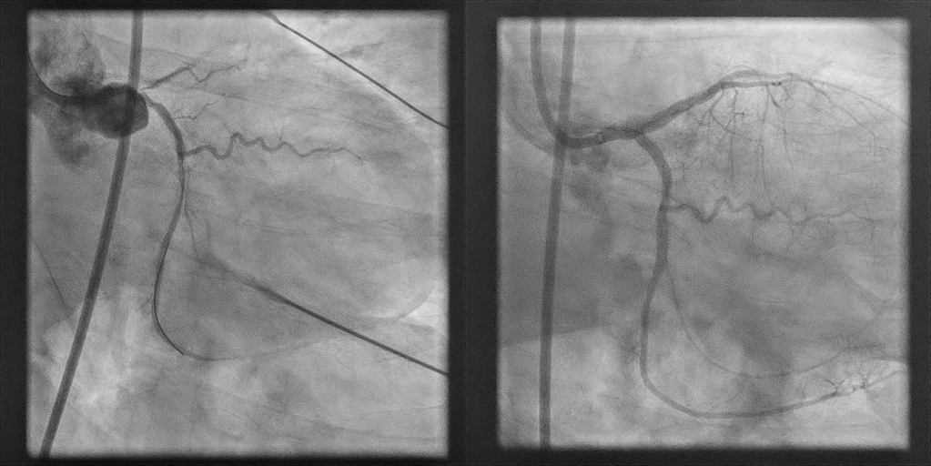 coronary arteries before and after intervention