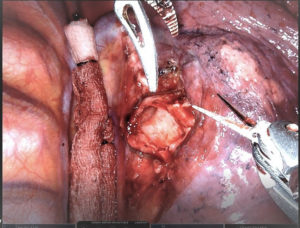 lung during a bronchotomy surgery