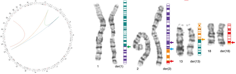 diagram of chromosomal rearrangments