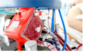 extracorporeal membrane oxygenation (ECMO) machine