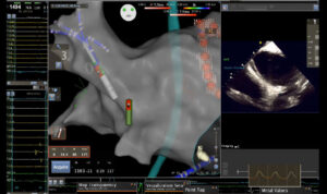 Ablation imaging