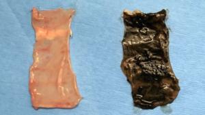 intestinal tissue