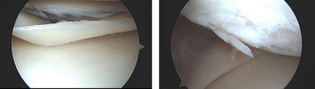 image of meniscal tear and cartilage tear